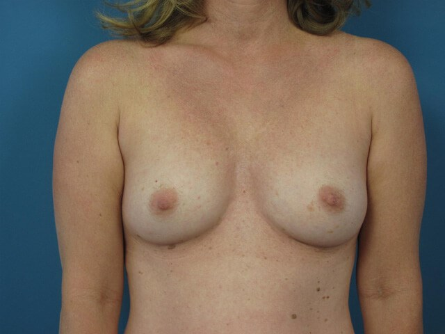 Front View Breasts Before
