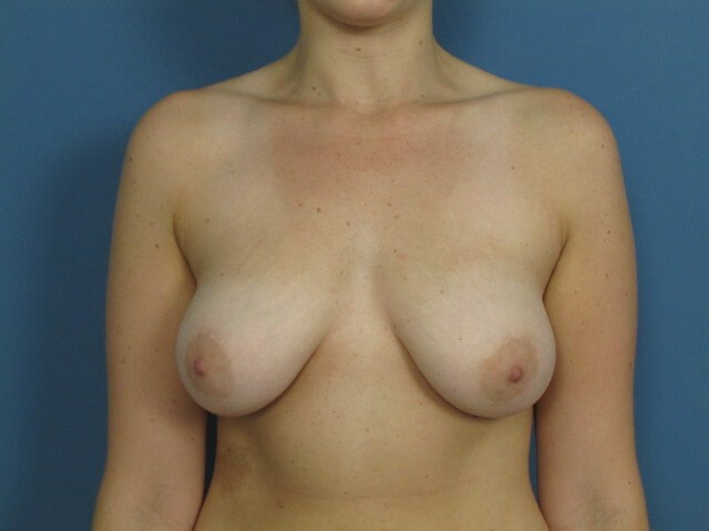 Front View Breasts After