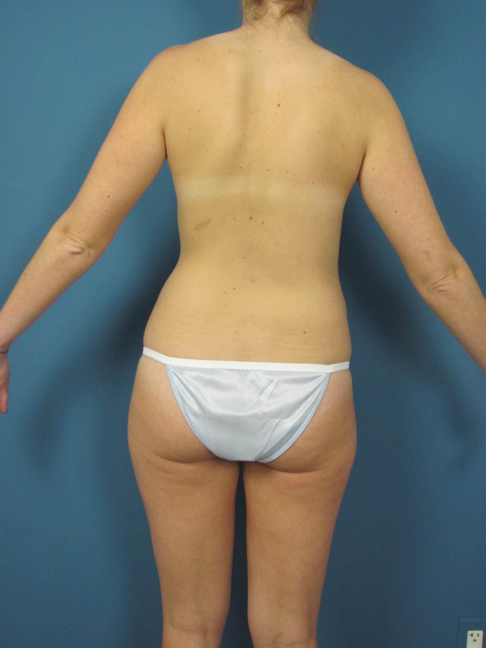 Back View Liposuction Before
